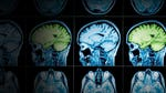 """Image for the Health programme """"Can Alzheimer's Be Stopped?"""""""